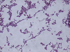 512px-Bacillus_subtilis_Gram_stain