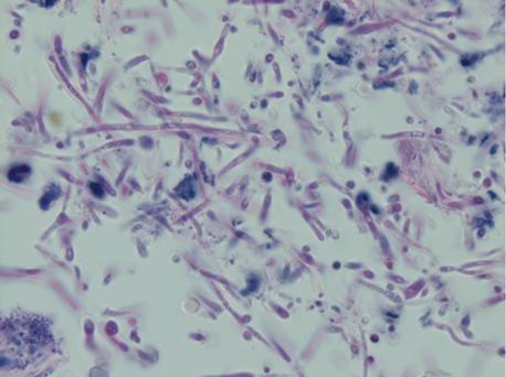 Candida – Lablogatory