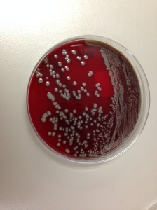 Blood agar plate with gray-white, moist, smooth, non-hemolytic bacterial colonies.