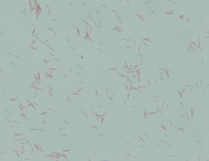 Gram stain of organism 1