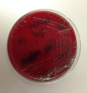 Isolate of organism 1 on anaerobic blood agar showing dry, white colonies.