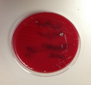 Isolate of organism 2 on anaerobic blood agar showing small, white colonies with no hemolysis