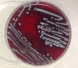 Sheep blood agar growing nonhemolytic grey-yellow mucoid bacterial colonies.