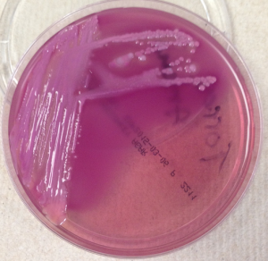 MacConkey agar growing mucoid lactose fermenting (pink) bacterial colonies.