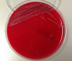 Sheep blood agar with smooth, gray, non-hemolytic bacterial colonies.