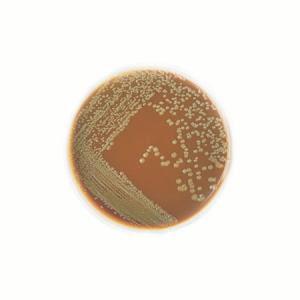 Chocolate agar plate with small gray, slightly mucoid colonies.  Photo courtesy of pixgood.com