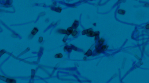 Lactophenol analine blue tape preparation.