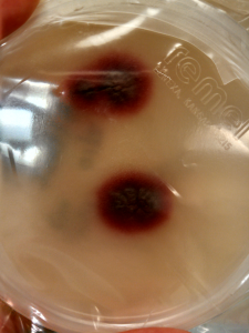 Colony morphology with deep purple red pigmentation.