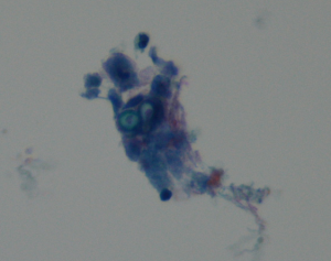 Bronchoalveolar lavage fluid (Pap stain).