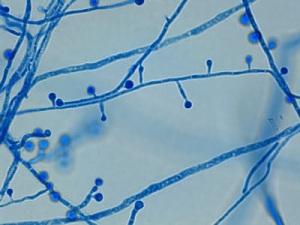 Organism morphology with lactophenol cotton blue scotch tape prep.