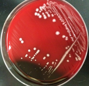 CSF aerobic culture on blood agar