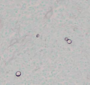Silver stain of involved bone with fungal organisms exhibiting broad-based budding.