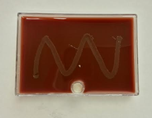 N. gonorrhoeae inoculated directley onto the Jembec plate