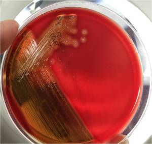 Large zones of beta-hemolysis around colonies growing on 5% sheep blood agar