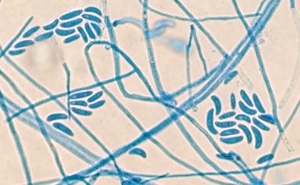 Microscopic identification of Fusarium by lactophenol cotton blue stain.