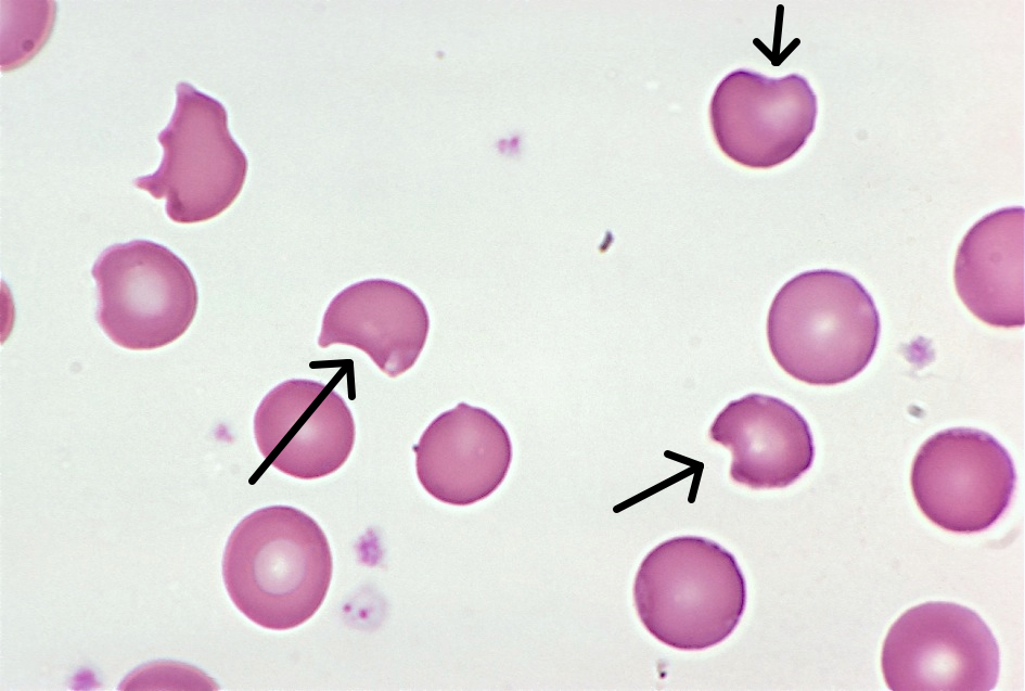 hematology – A blog for medical laboratory professionals