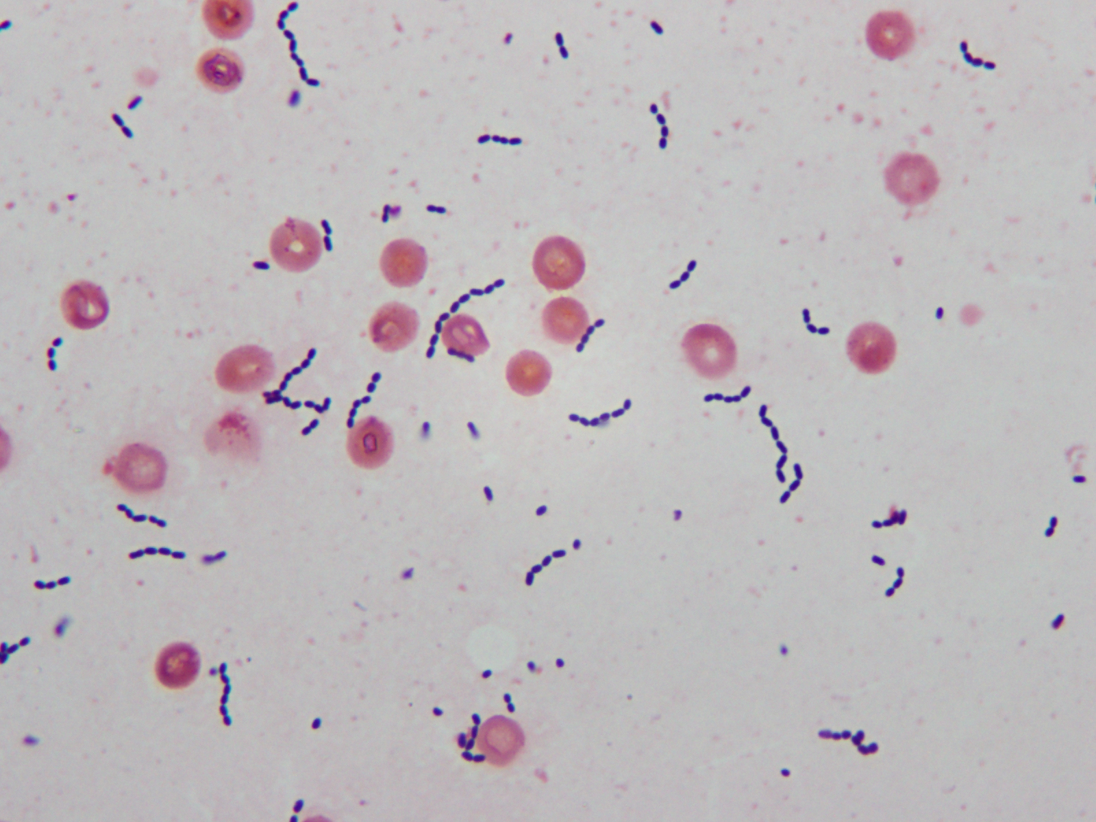 microbiology gram positive cocci Gram positive cocci gram positive cocci - image gpc in clusters gpc in  chains hover over the circles to see a more detailed view click the circle that  best.
