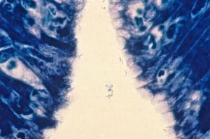 gastric biopsy Giemsa stain