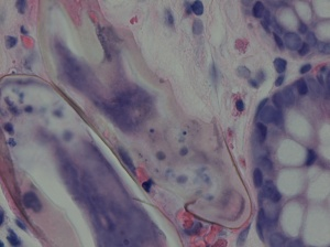 H&E stain of colon biopsy