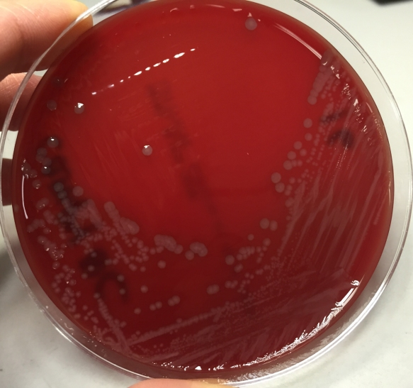 Biochemical Test of Escherichia coli E coli