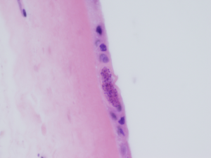 "Figure 1b: Amnion of the fetal membrane: Round to elongate cysts measuring approximately 50 microns in diameter. There are innumerable small round ""dot-like"" structures within the cysts (H&E, 600X)."