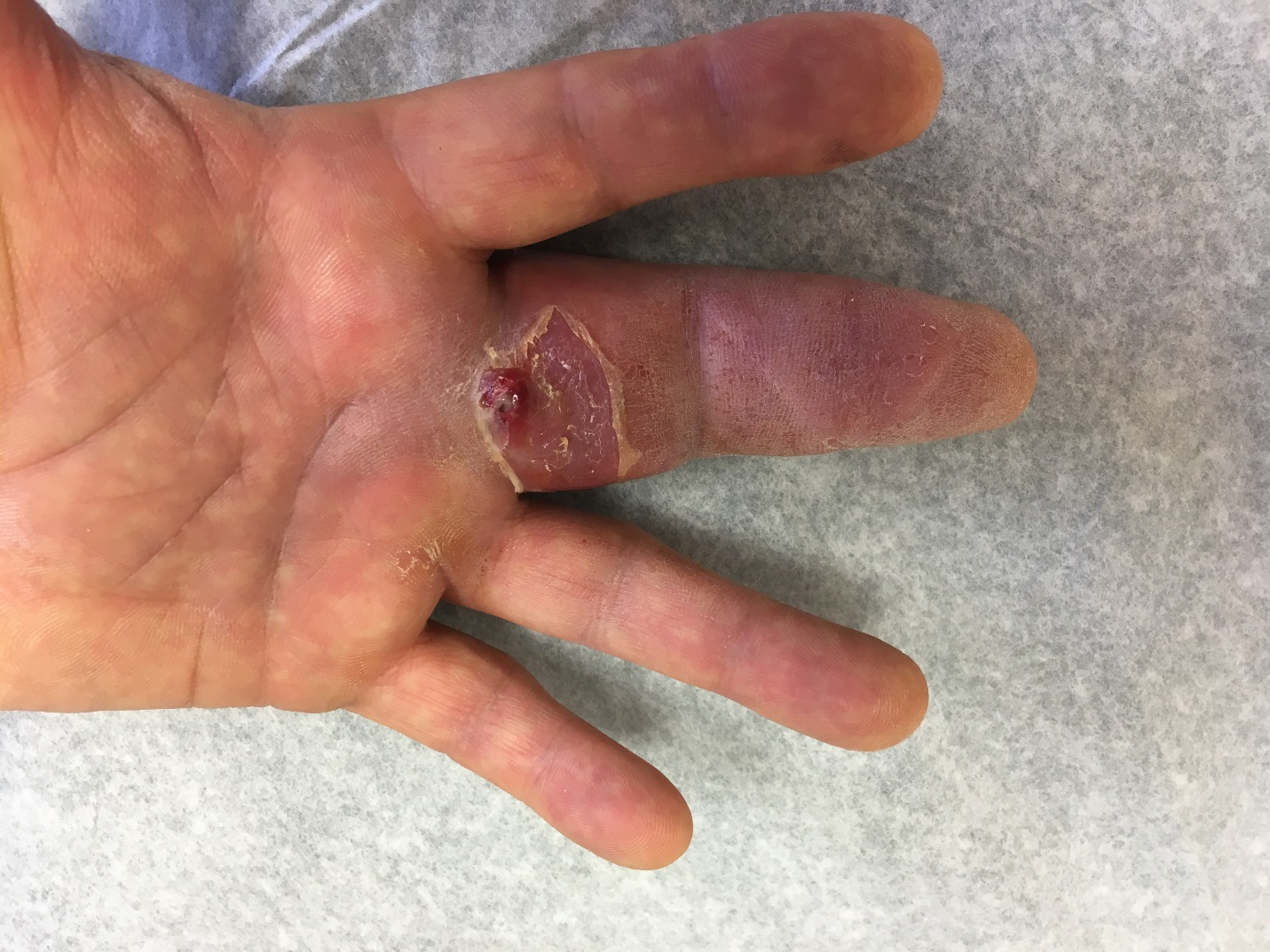 Microbiology Case Study A 51 Year Old Male With Swelling In His Finger Lablogatory