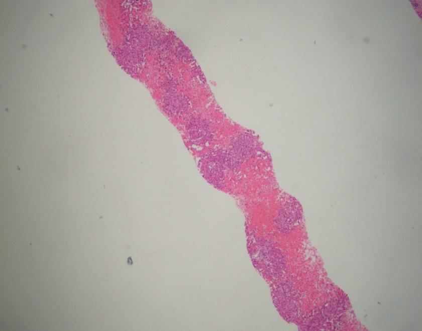 2-cases-liver2x