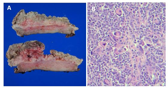 Microbiology Case Study: A 60 Year Old Woman with Endometrial Cancer