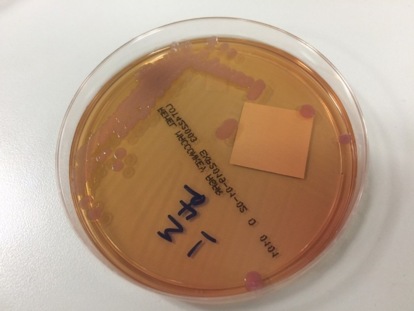 microbiology case study examples