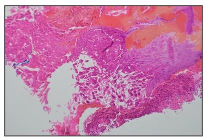 Infecção da pele e tecidos moles causada por uma bactéria incomum - Lablogatory 3