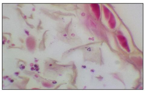 Infecção da pele e tecidos moles causada por uma bactéria incomum - Lablogatory 4