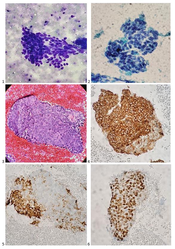 Estudos de caso de citologia mediastinal - Lablogatory 2