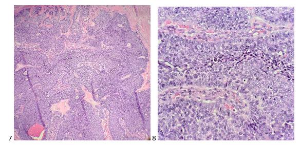 Estudos de caso de citologia mediastinal - Lablogatory 3