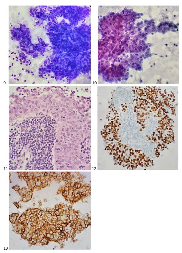 Estudos de caso de citologia mediastinal - Lablogatory 4