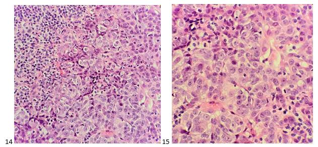 Estudos de caso de citologia mediastinal - Lablogatory 5