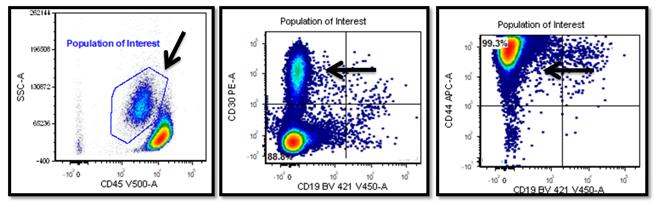 A utilidade da citometria de fluxo no estabelecimento do diagnóstico correto de um linfoma agressivo raro - Labogatório 3