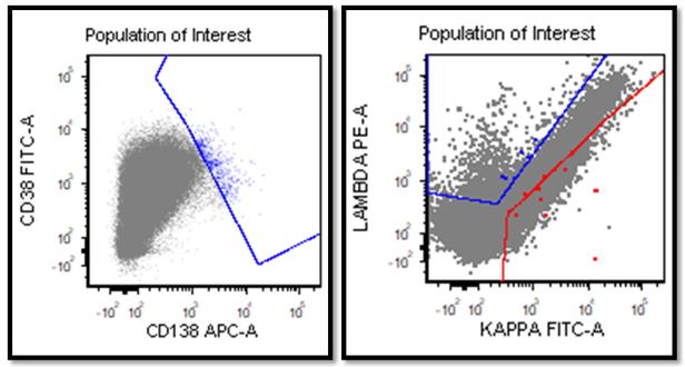 A utilidade da citometria de fluxo no estabelecimento do diagnóstico correto de um linfoma agressivo raro - Labogatório 5