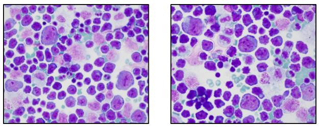 A utilidade da citometria de fluxo no estabelecimento do diagnóstico correto de um linfoma agressivo raro - Labogatório 2