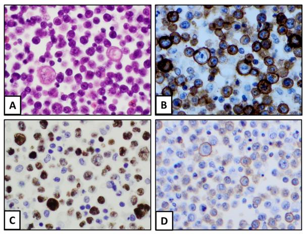 A utilidade da citometria de fluxo no estabelecimento do diagnóstico correto de um linfoma agressivo raro - Labogatório 7