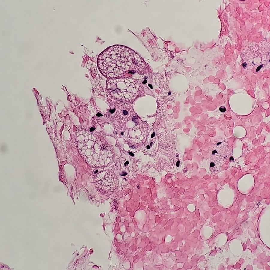 Estudo de caso de citologia - Labogatório 4