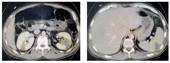 Homem de 35 anos com dor no peito - Lablogatory 2