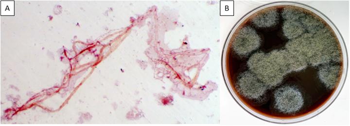 Uma pessoa de 30 anos com febre pós-transplante de células-tronco - Lablogatory 3