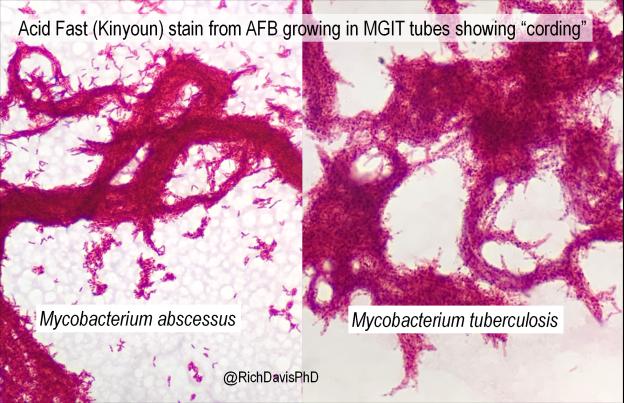 """Cording"" em isolados clínicos de Mycobacterium - Lablogatory 4"